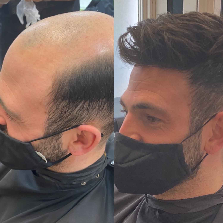 Mens-Hair-Systems-2