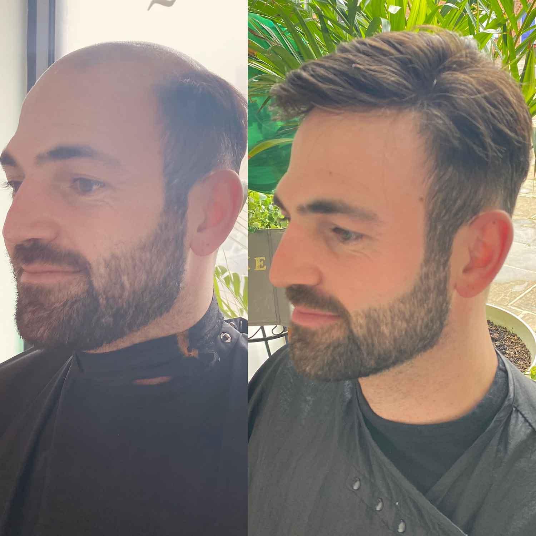 Mens-Hair-Systems-1
