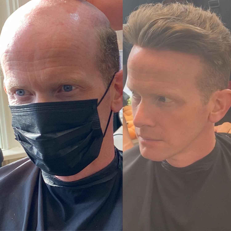 Mens-Hair-Systems-3