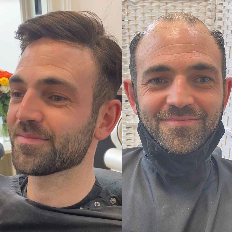 Mens-Hair-Systems-4